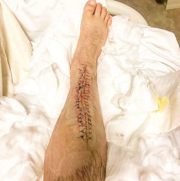 慎入!UFC拳王小腿被劈开 夸张伤口照看了都疼