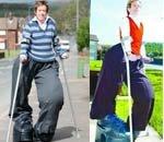 女子患上罕见巨腿症