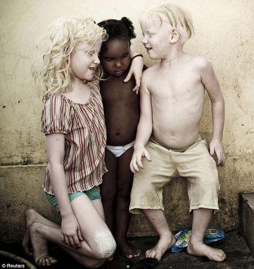 罕见黑人家庭:5个孩子竟有3个患白化病(图)
