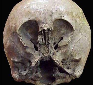 墨西哥怪异头骨:疑为外星人和地球人混血儿