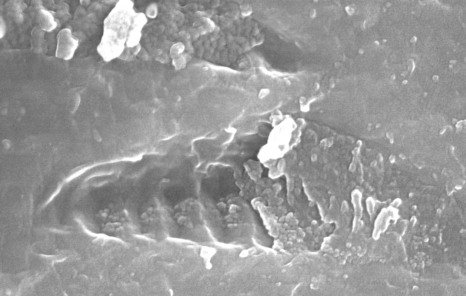 """科学家在火星陨石中发现""""生物化石形态"""""""