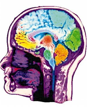 科学家发现磁场可影响人类大脑是非判断(图)