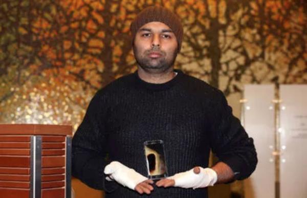 加拿大男子手中三星S7手机爆炸:手腕被三级烧伤