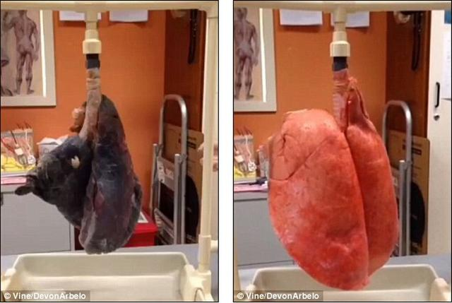 """实验表明吸烟者的肺""""且黑且干瘪"""""""
