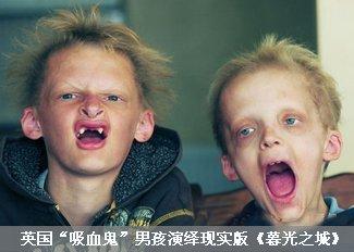 """""""吸血鬼""""男孩演绎现实版《暮光之城》"""