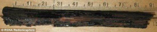 科学家发现千年木乃伊头颅中残留的取脑棒