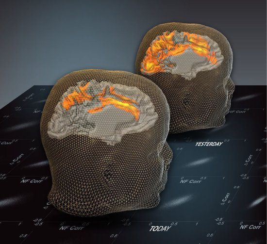 科学家称未来大脑扫描可以揭开你的个人史