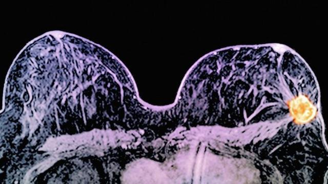 英医生发现应对乳腺癌速效药 2周癌细胞消失
