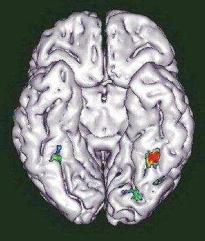 """大脑""""拆迁"""":阅读能力强的人面部识别力弱"""