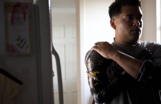 11万美元的机械手臂:如何学会接受和控制假肢