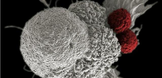 一种全新对付癌细胞的方法明年将进入临床