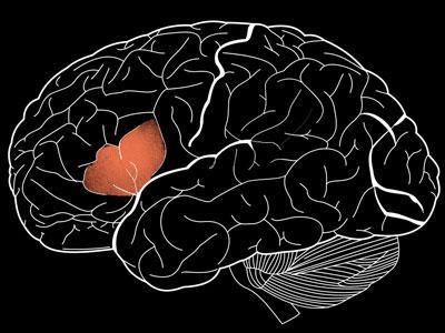 科学家发现一种人类所独有的脑沟结构