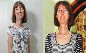 女子患罕见怪病:身材极瘦无法医治