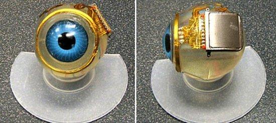 英盲男子植入仿生眼微芯片 数天内重见光明
