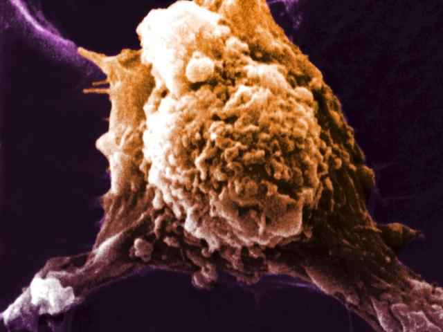 科学家发现一种新方法制作抗癌疫苗 副作用非常小