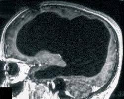 这名法国男子失去90%大脑 依然健康地正常活着