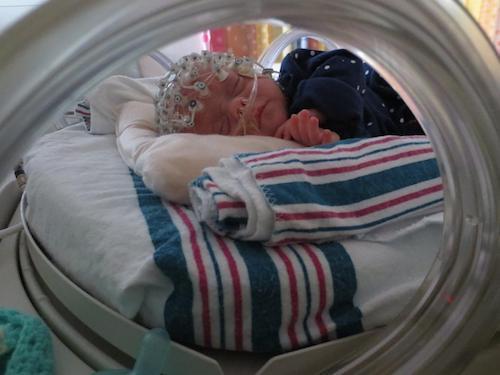 早期触摸经历塑造婴儿大脑