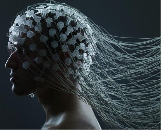"""电极刺激大脑 会让你""""回到过去"""""""
