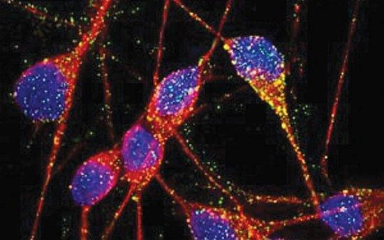 英科学家首次成功利用人类皮肤生成大脑细胞