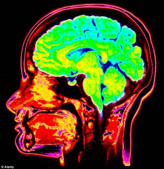 科学家揭开健忘的真正起因 区别于老年痴呆