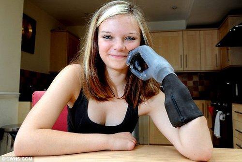 """高科技改变生活 15岁少女""""新左手""""样样能干"""