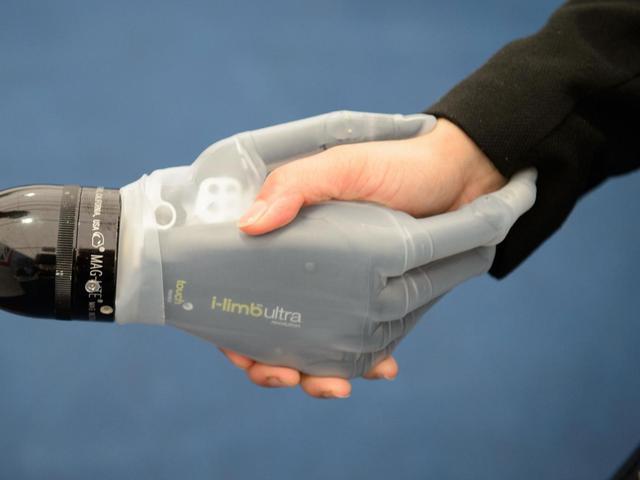 科学家试图教会机器人感觉疼痛以保护人...