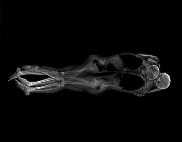 日本艺术家用X射线拍摄情侣亲密照片