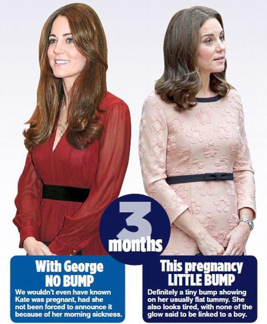 凯特王妃4月生第三胎 民众猜男女猜姓名太高能!