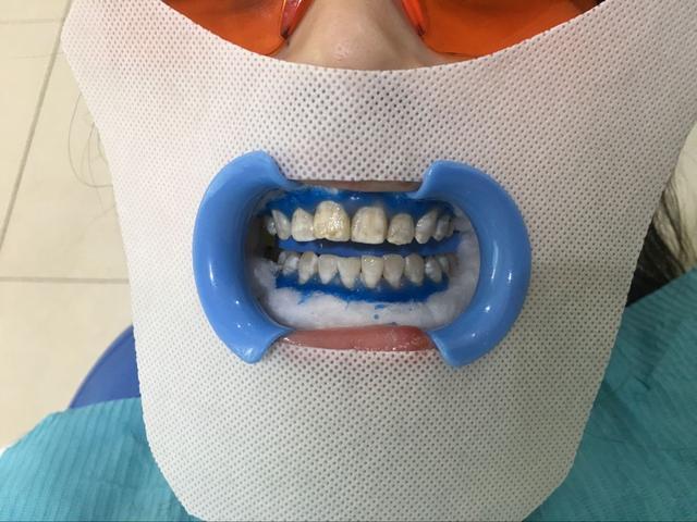 冷光美白 牙齿美疯了