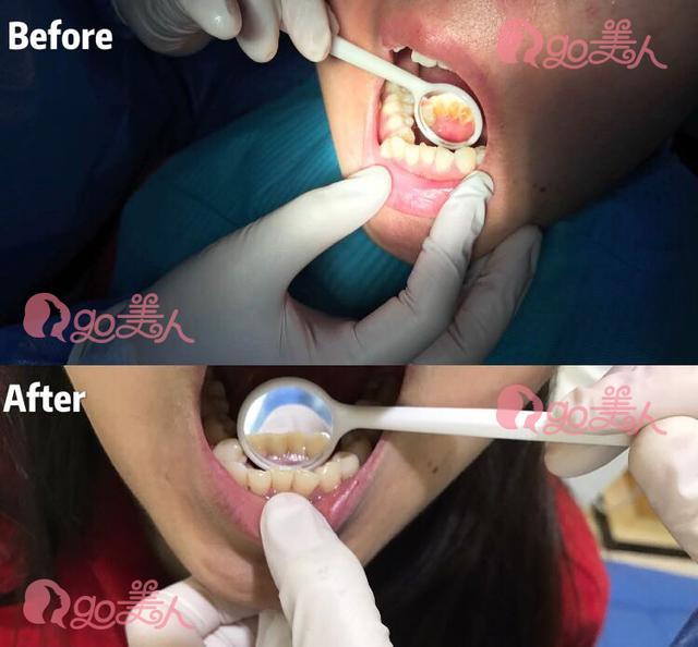 你的牙齿拉低颜值了吗?这些女生变美从改变牙齿开始