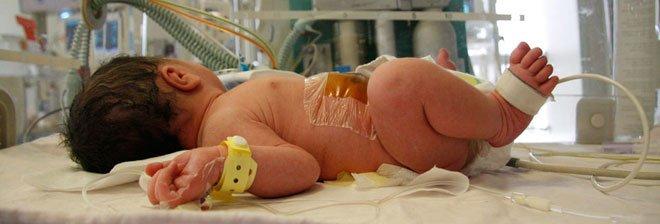 出生缺陷婴儿