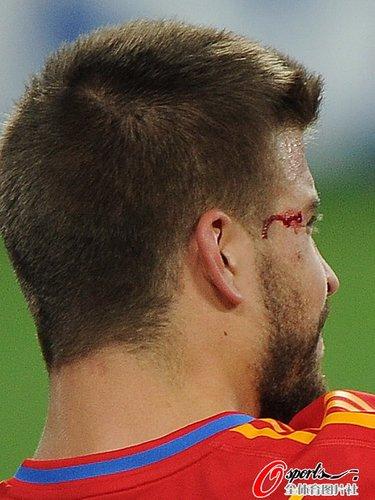 图文:西班牙0-1瑞士 皮克受伤流血特写