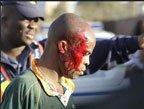 视频:世界杯热身赛球迷踩踏 20人受伤酿惨案