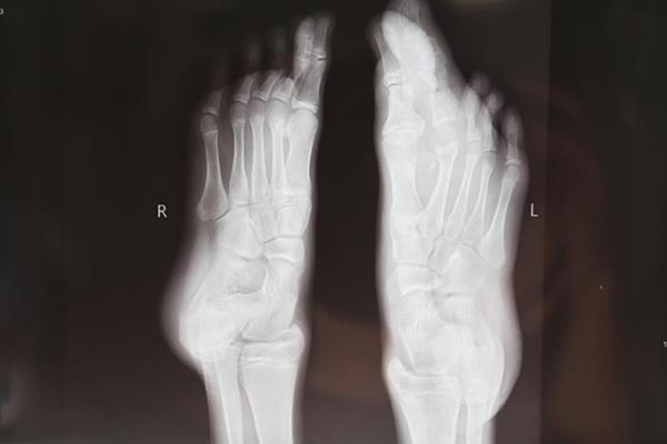 """罕见的巨趾(指)症 终于被交大二附院""""掰""""掉了"""