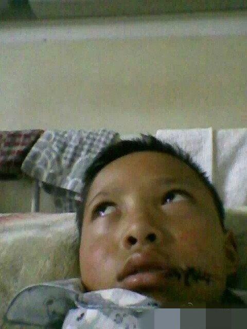 男童遭后母撕嘴挑手筋 多处被划伤 - 锦屏明月 - 锦屏明月