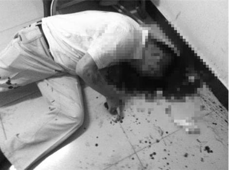 照片中72岁的李老太太左眼青肿,胳膊上有明显的手铐痕迹.图片