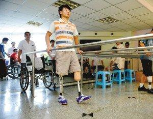无腿新生装假肢练习走路 称要自己走进大学