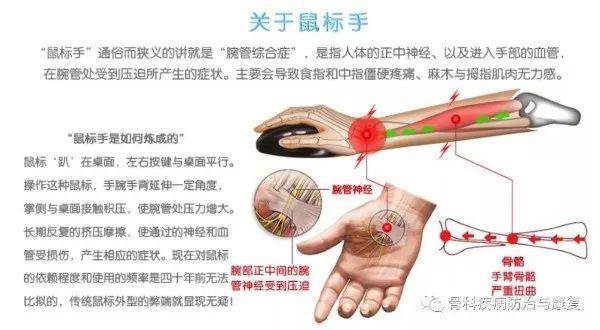 严重时疼痛还会延伸到胳膊,后背,以及脖子上,严重影响工作状态,不可