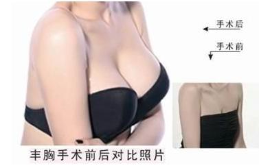 爱美者推荐常见丰胸术