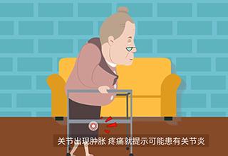 第5期:什么是类风湿关节炎