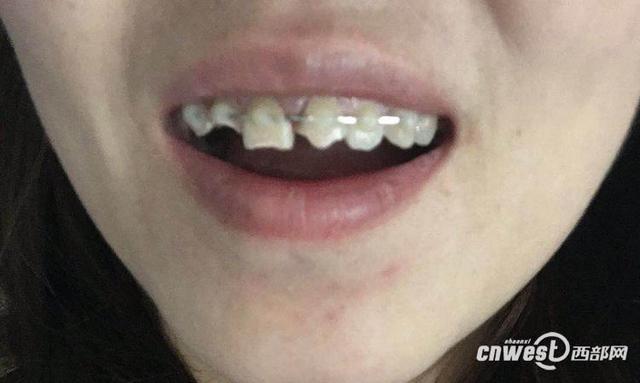 女子五星酒店内摔断三颗牙 酒店回应与其无关