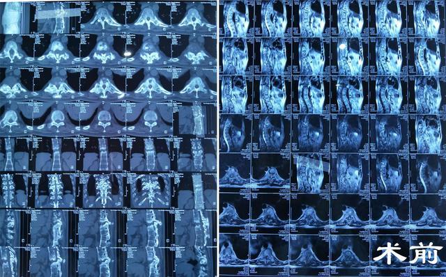 48岁男子患胸椎结核 竟当腰椎病10余年