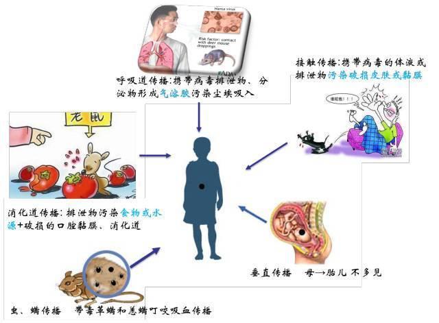 专家提示:肾综合征出血热可防可治,不可怕