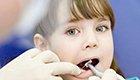 牙疼发作专家帮你解决