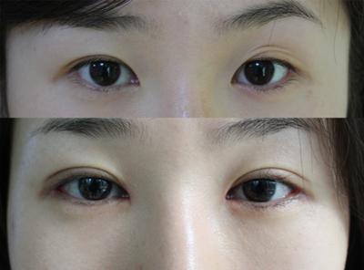 详解无痕双眼皮整形术