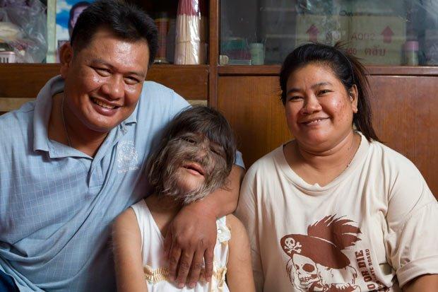 组图:泰国11岁小女孩长毛浑身被称狼女你钥匙把给女生图片