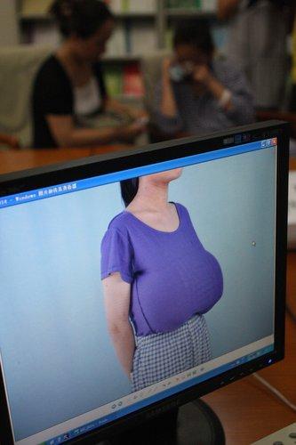 刚刚发育的12岁少女,乳房如篮球般大小,这给女孩在生理和心理上造成了