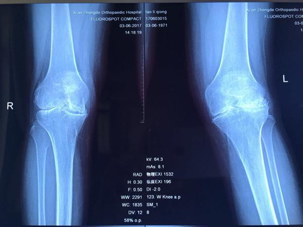 患风湿性关节炎20年  享精准扶贫3天即可行走