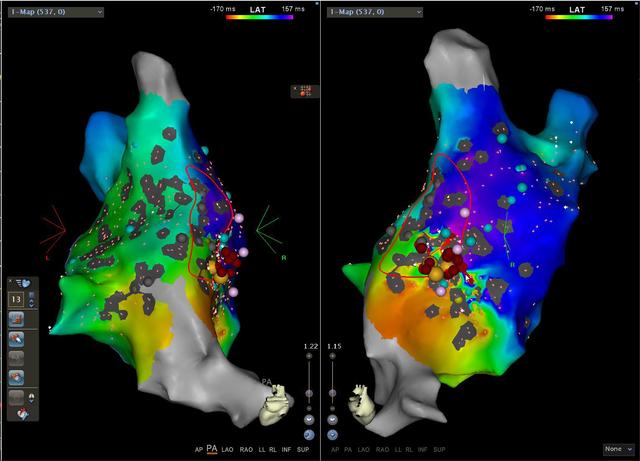 心血管病院再次挑战高难度手术——疤痕相关大折返房扑的消融