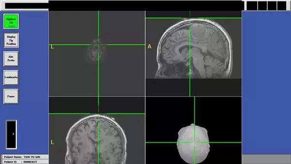 交大二附院利用电磁导航系统成功切除肿瘤